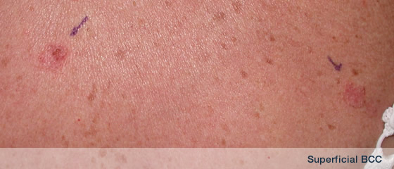 basal cell carcinoma (bcc) information by dermsurgery from dr, Cephalic Vein