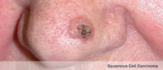 Keratoacanthoma by DermSurgery from Dr Sandeep Varma